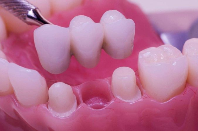 crowns-and-bridges-1-675x448 3 Types of Cosmetic Dental Procedures That Will Work Wonders for Your Smile