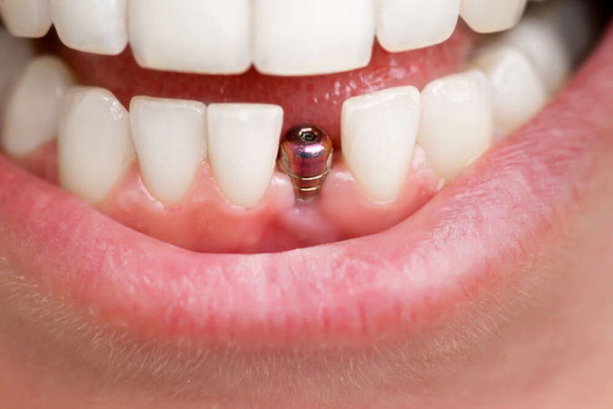 dental-implants-675x450 3 Types of Cosmetic Dental Procedures That Will Work Wonders for Your Smile