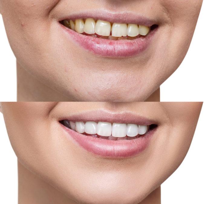 dental-veneers-1-675x675 3 Types of Cosmetic Dental Procedures That Will Work Wonders for Your Smile
