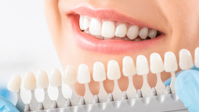 teeth-whitening-675x380 3 Types of Cosmetic Dental Procedures That Will Work Wonders for Your Smile