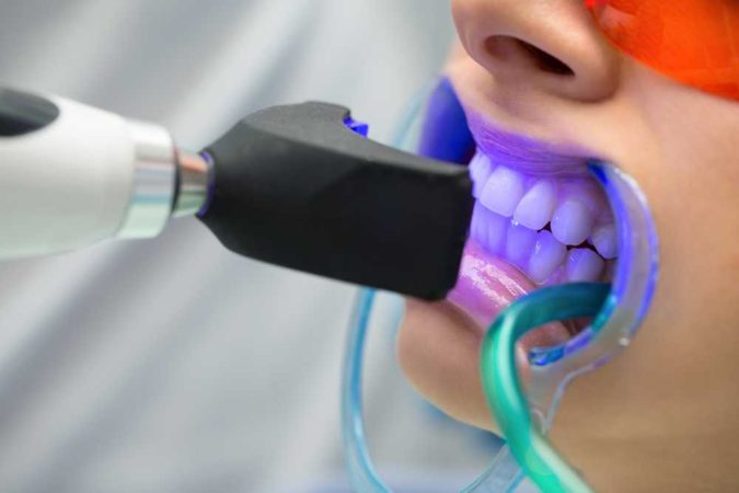 teeth-whitening.-675x450 3 Types of Cosmetic Dental Procedures That Will Work Wonders for Your Smile