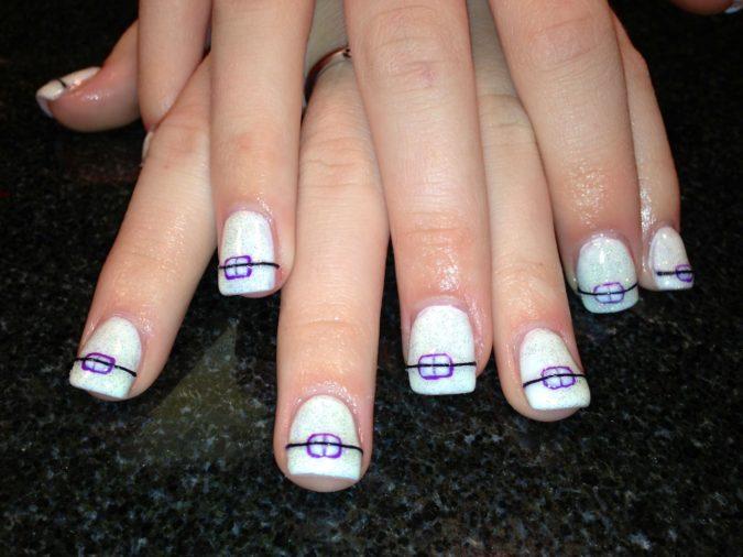 Braces-Nail.-675x506 20 Weirdest Nail Art Ideas That Should Not Exist