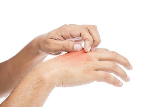 hand-allergies-675x450 Top 10 CBD Hand Sanitizer Benefits