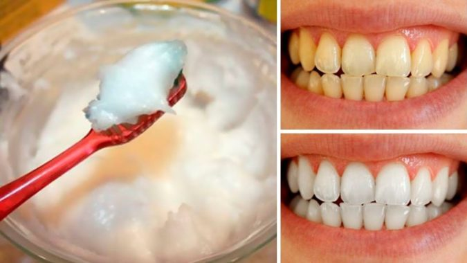 """White-teeth-675x380 How to Get Natural """"No-Makeup"""" Makeup Look for Work (Step by Step)"""