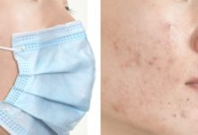 Photo of Protect Your Skin from Acne Caused by Face Mask with Simple Remedies