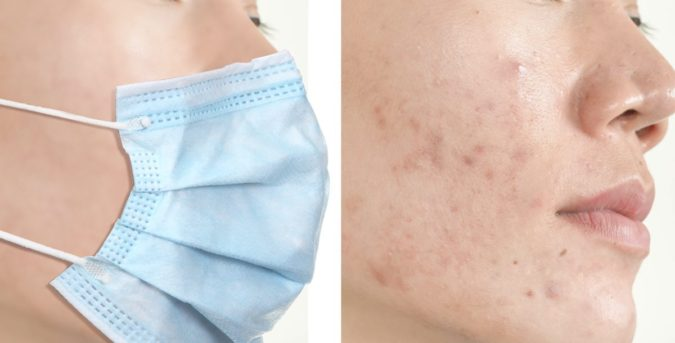 Mask-Acne-675x343 Protect Your Skin from Acne Caused by Face Mask with Simple Remedies