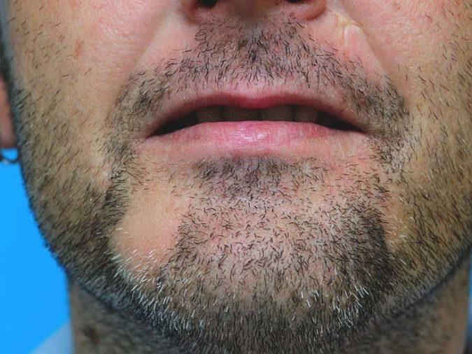 Difficulty-Growing-Beard-675x506 Top 4 Benefits of Having a Beard Transplant