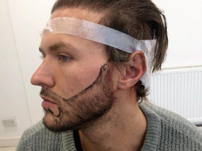 beard-hair-transplant-675x504 Top 4 Benefits of Having a Beard Transplant