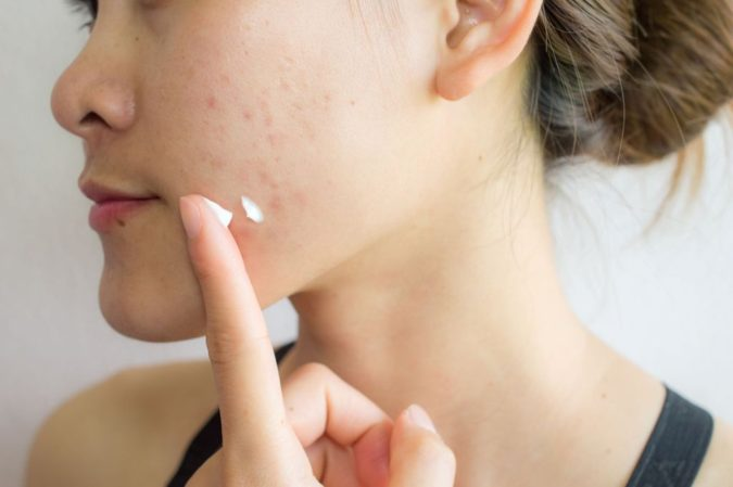 Benzoyl-Peroxide-skincare-675x449 The Benefits of the Ingredients in Your Skincare