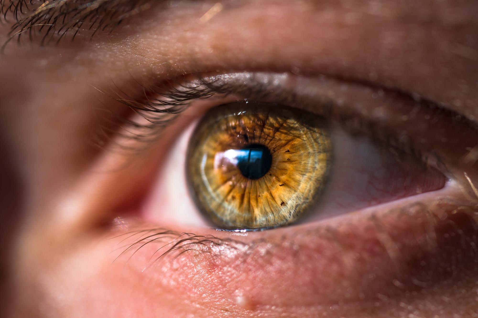 Hazel 7 Rarest and Unusual Eye Colors That Looks Unreal