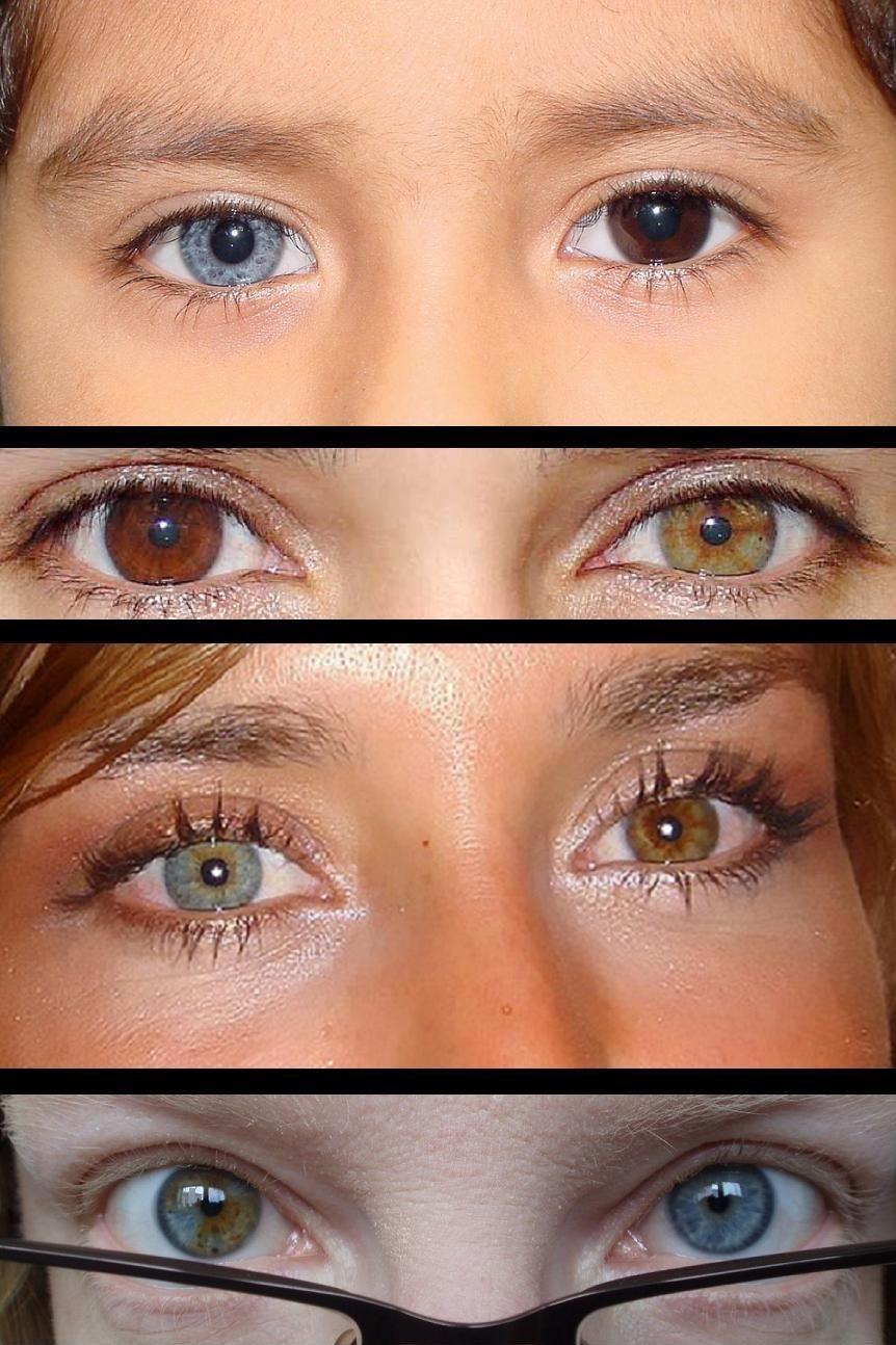 Heterochromia. 7 Rarest and Unusual Eye Colors That Looks Unreal