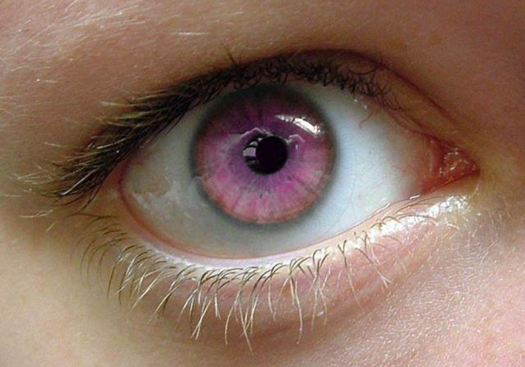 pink-eye-color 7 Rarest and Unusual Eye Colors That Looks Unreal