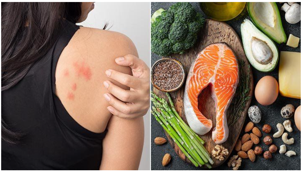 eczema-1 How Food Affects Our Skin: Diseases and Treatment