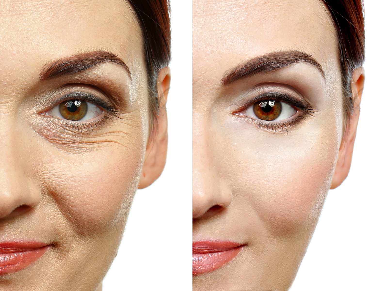 Microneedling Here's How to Prevent the Formation of Wrinkles